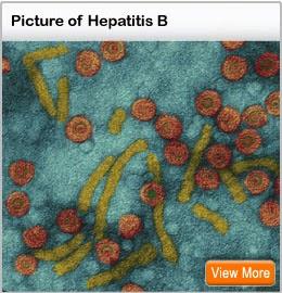 Ramuan Obat Penyembuh Penyakit Hepatitis B
