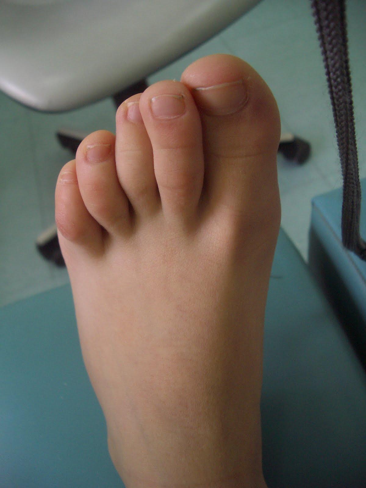 Se ha inflamado la vena en el pie como ayudar