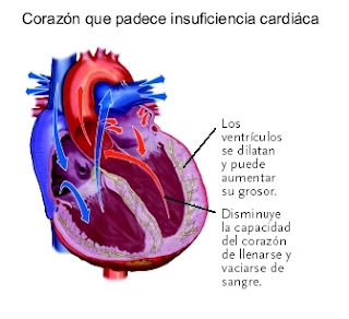 Qué es la insuficiencia cardiaca
