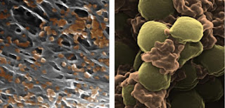 Nanoparticles Make Medicines More Effective