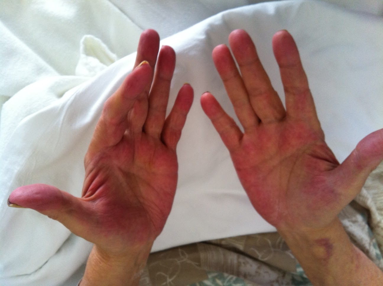 Palmar-Erythema-From-Alcoholic-Liver-Disease