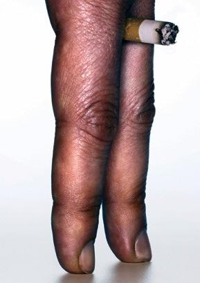 A pele deixou de fumar deteriorou-se