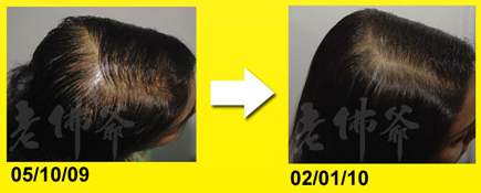 before and after treatment of oily scalp