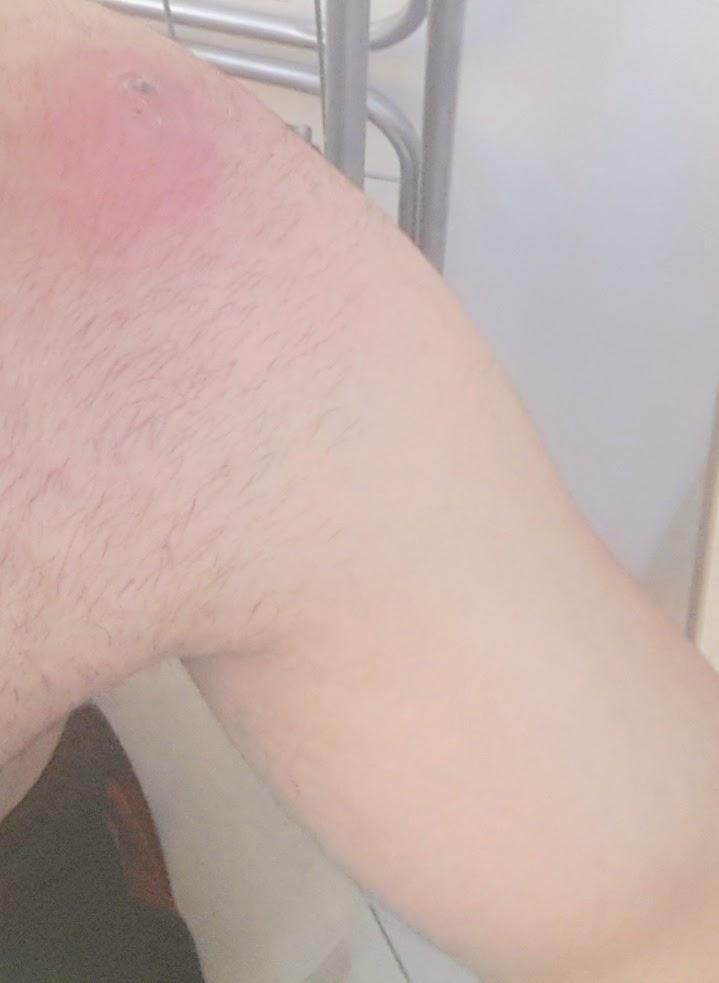 skin boil