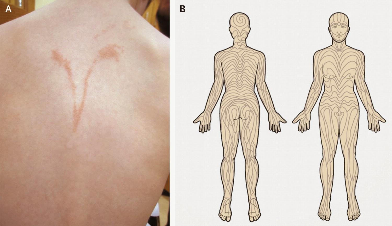 Dermapixel: Liquen estriado: la inflamación de las líneas de Blaschko