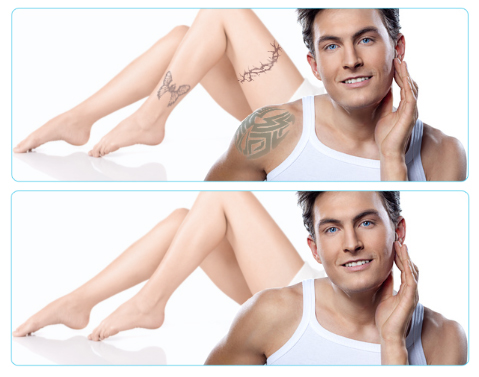Laser Tatto Removal on Special Offer  Laser Tattoo Removal