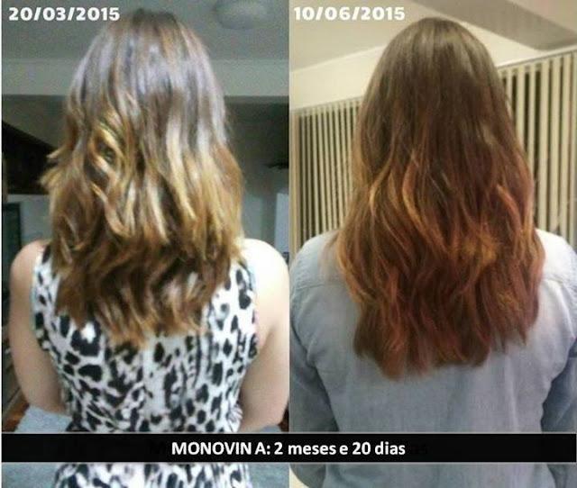 Monovin A Antes e Depois 2 Meses e 10 Dias de Shampoo Bomba