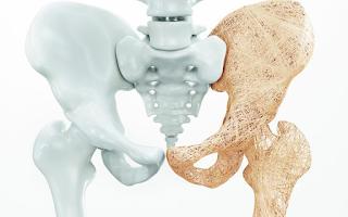 Anvisa aprova tratamento para osteoporose que é capaz de formar osso
