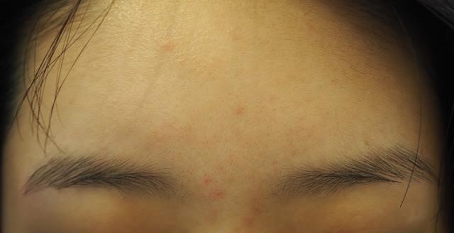 SkinLab Medical Spa Salicylic Acid Peel Facial Treatment Review Lunarrive Singapore Lifestyle Blog