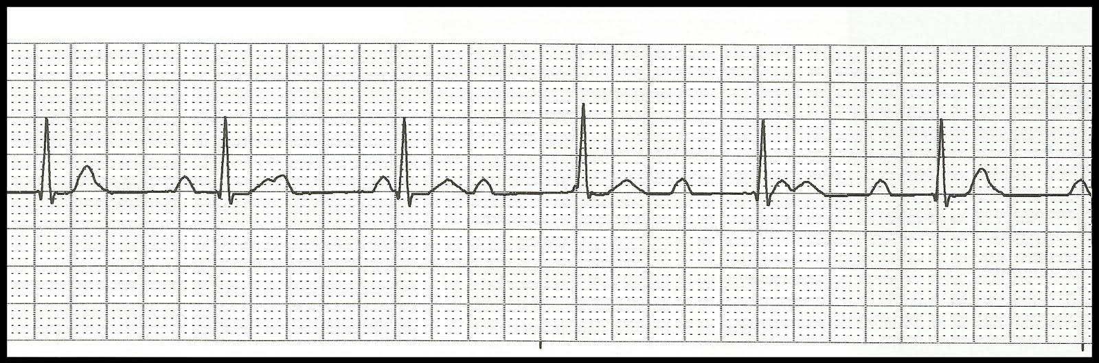 ekg rhythm strips of heart block organization your