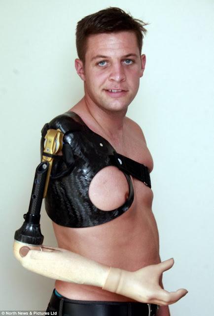 Bekas Askar British Dapat Tangan Bionik