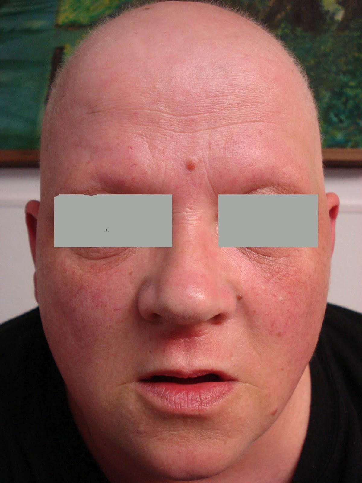 what is ectodermal dysplasias #10