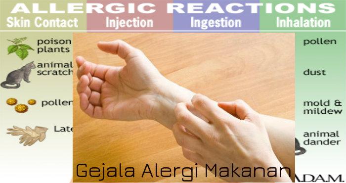 Gejala Alergi Makanan