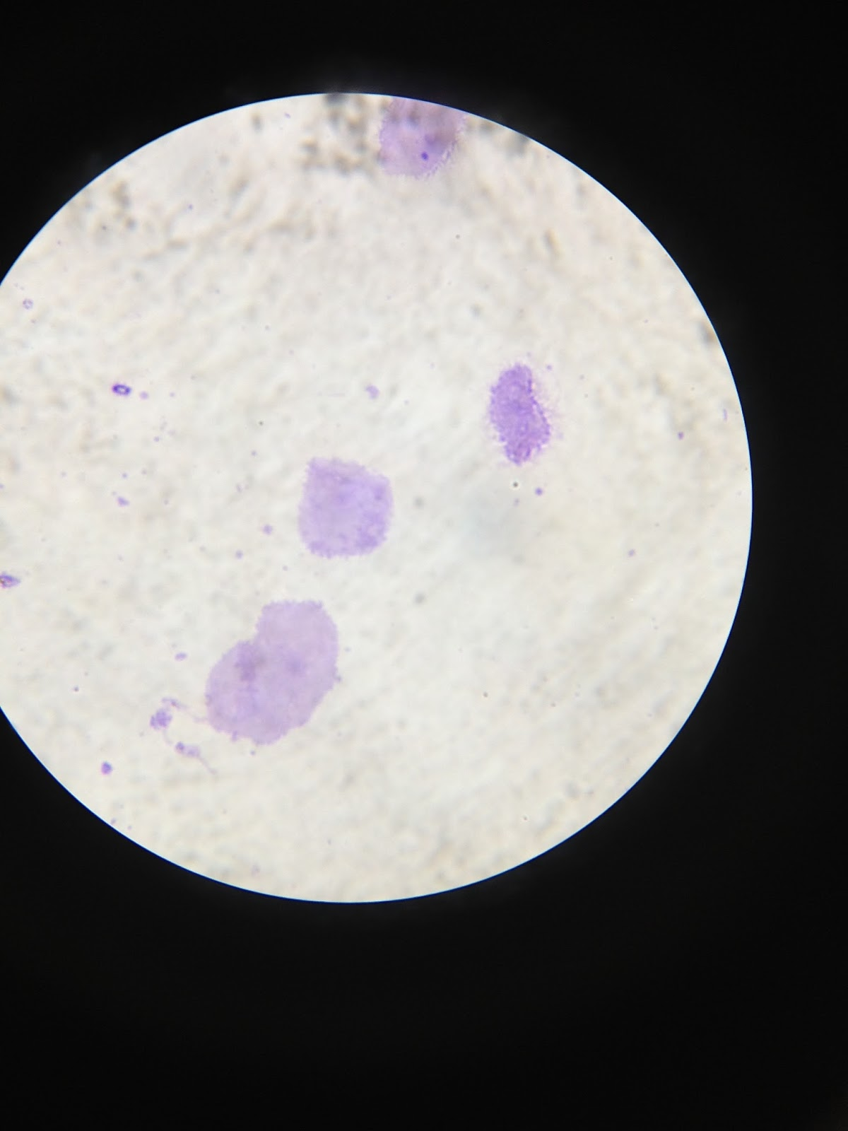 Galleries Related  Human Cheek Cell 400x   Human Cheek Cell 100x  Human Cheek Cell 100x