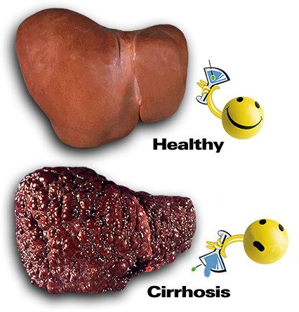 applied acupuncture: applied acupuncture for liver cirrhosis, Human body