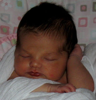 Jase Robertson Daughter Cleft Palate
