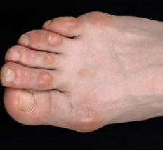 how to kill warts on bottom of foot
