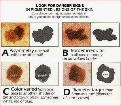 melanoma kanker kulit