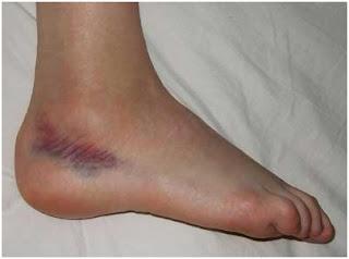 O que pode ser lesado numa entorse do tornozelo?