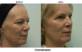 Chemabrasion Skin Resurfacing in Santa Barbara