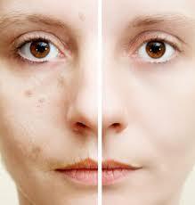 ebook sobre manchas en la piel