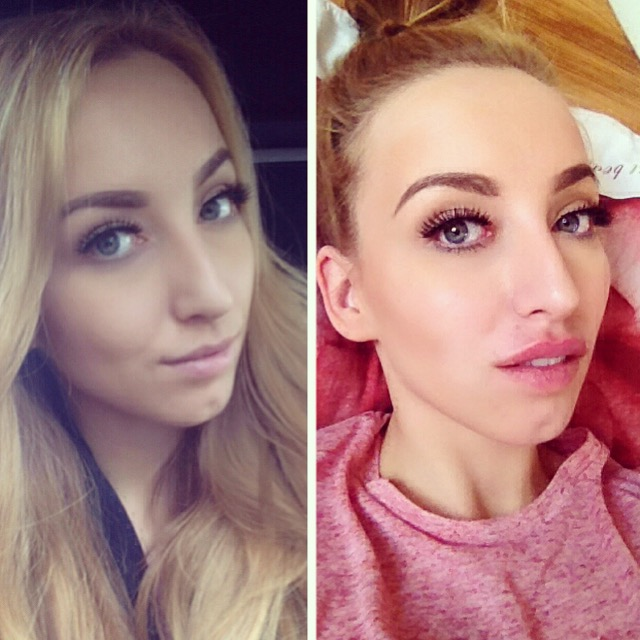 LIP AUGMENTATION   BEFORE & AFTER LIP FILLERS