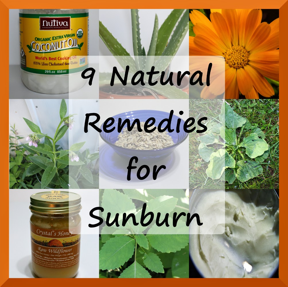 9 Natural Remedies for Sunburn | Musings of a Modern Hippie