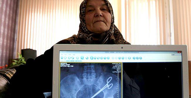 Wanita Turki Saman Doktor Kerana Gunting Tertinggal Dalam Perut Selama 5 Tahun