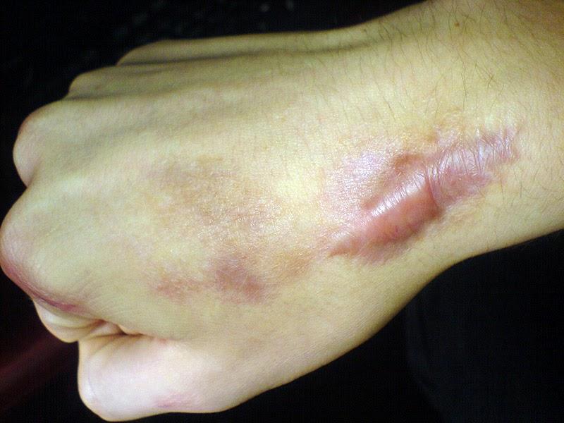triamcinolone injection for keloid