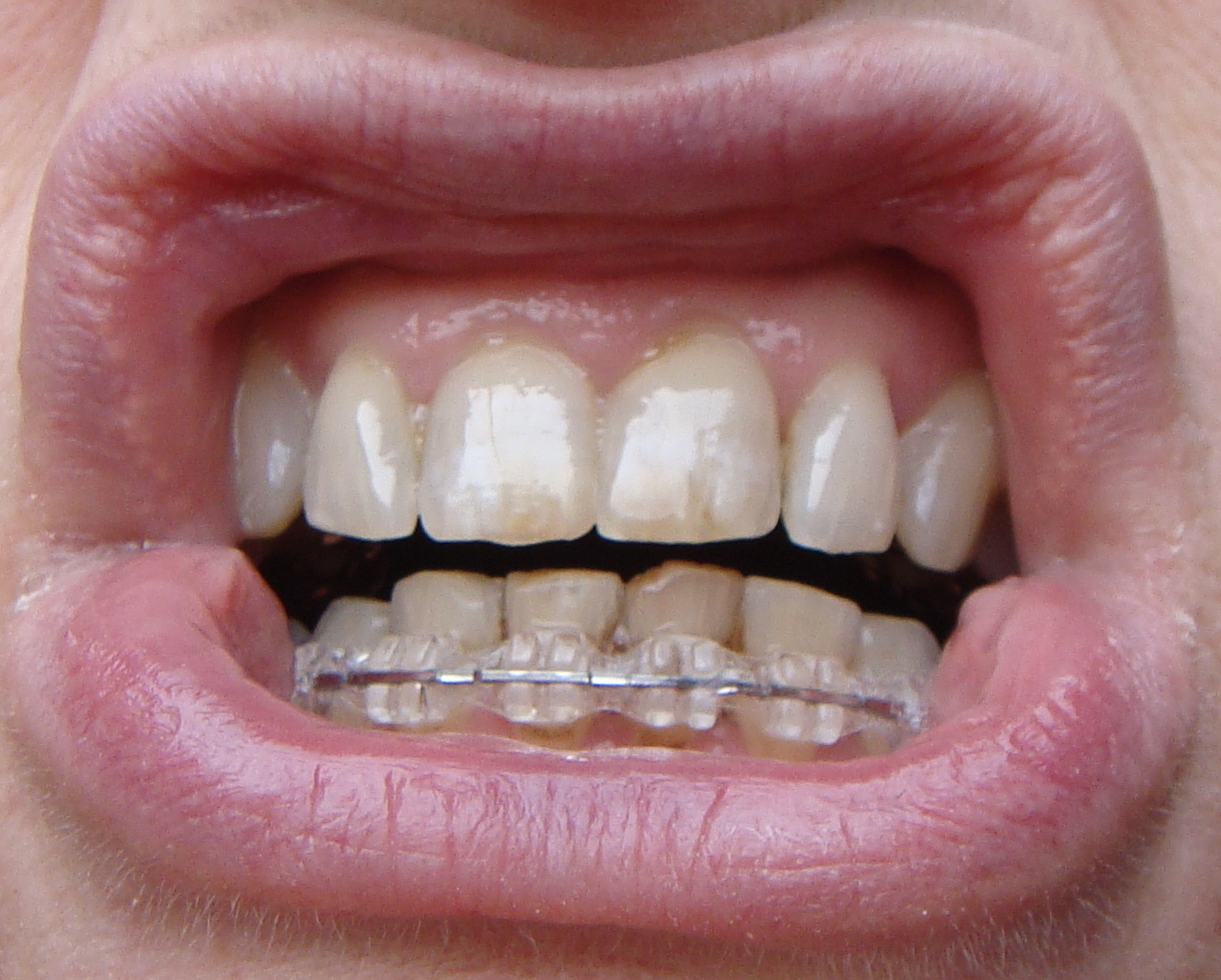 Braces at 56: Retainer wire on bottom teeth. Softer wire on top ...