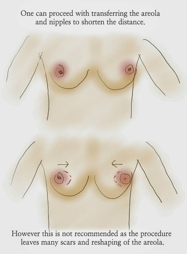 How do you correct wide separation of breasts?, breast, breasts, wide, separation, breast correction, breast surgery, breast surgeon seoul, breast surgery