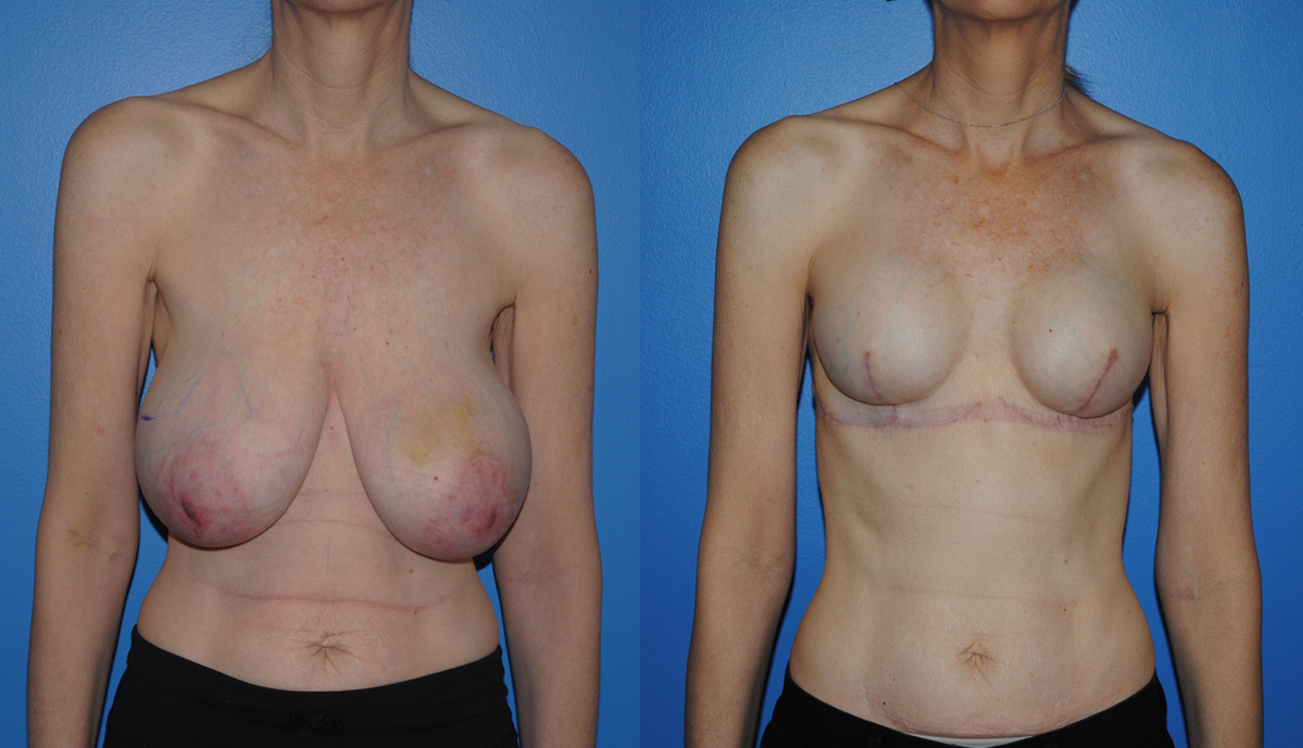 After breast complication implant reconstruction
