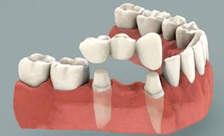 Biaya dan Harga Gigi Palsu dan Pasangnya yang Bagus dan Murah serta Jenis-Jenisnya