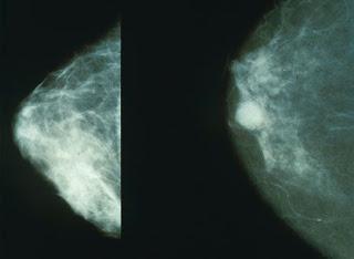 Jenis Kanker Paling Mematikan