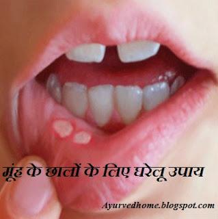 मुहँ के छाले होने पर क्या करे, Mouth Ulcer  Home Remedies in Hindi , muh ke chhalon ka gharelu ilaj, muh ke chale, मूंह के छालों के लिए घरेलू उपाय,