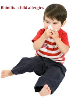 Rhinitis – Child allergies