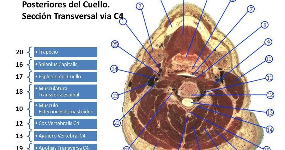 La anatomía es bella: Anatomía Seccional C4. Musculos Posteriores ...