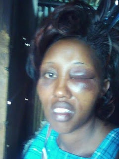 Oh My! Man Beats Wife To A Pulp For Showing Interest In Politics (Graphic Photo)
