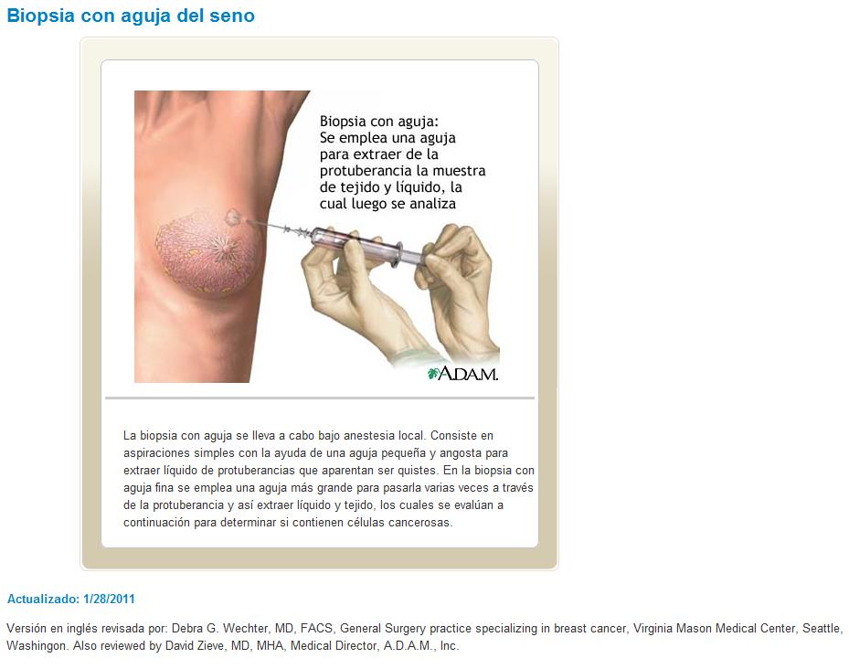 Bulto en el pecho tras la biopsia de mama -
