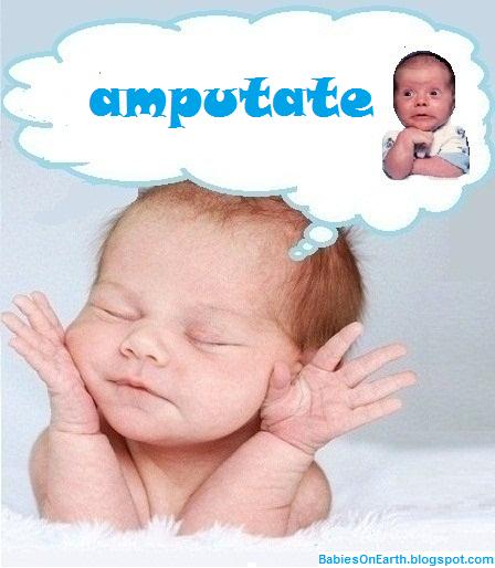 amputate
