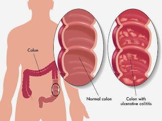 Biểu hiện và biến chứng của viêm loét đại tràng