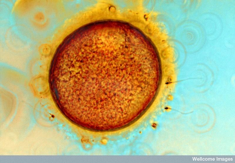 Óvulo humano rodeado de la corona radiada y algunos espermatozoides
