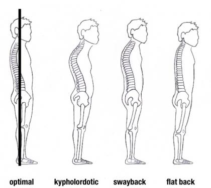 Fitness Grace Blog Which Posture Type Do You Have