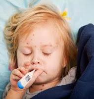 Obat Penyakit Cacar Air Alami