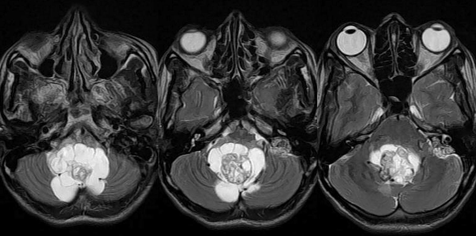 Dr balaji anvekar 39 s neuroradiology cases 01 03 12 01 04 12 for Mural nodule