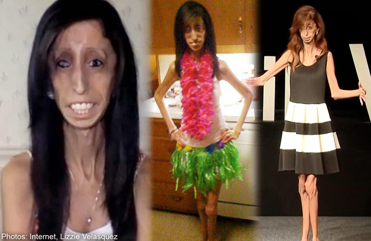 Entertainment: NICE: Ugliest Lady In The World Becomes Motivational ... Ugliest Person In The World Guinness World Record