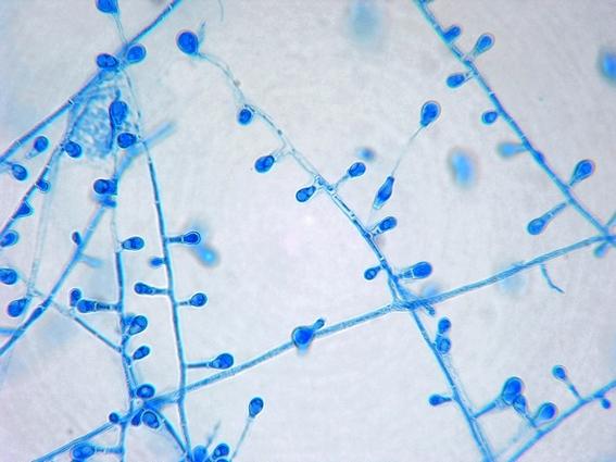 Fun With Microbiology (What's Buggin' You?): Chrysosporium ...
