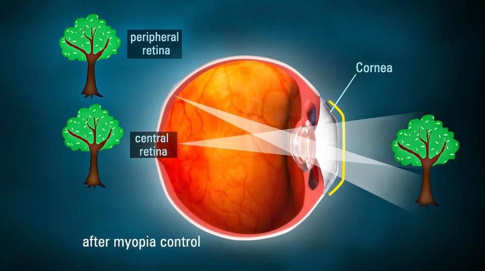high-myopia-eye-hospital.com/myopia/