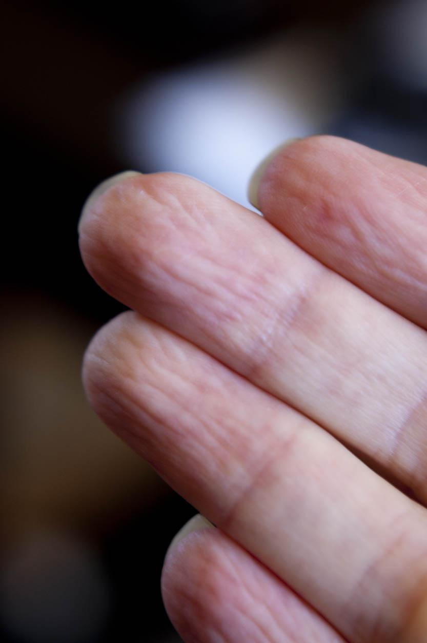 how to get rid of tingling in hands