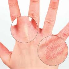 Remedies for dry skin patches treatment